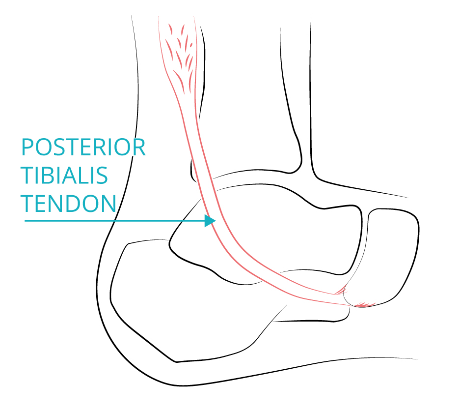 Tibialis posterior reconstruction or flat foot reconstruction