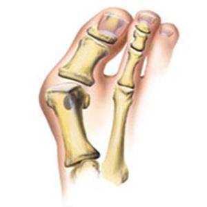 Bunion Surgery (Chevron or Scarf Osteotomy)